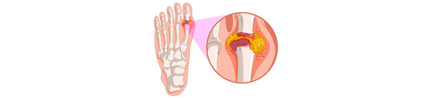 tratament de umflare a articulațiilor renale)